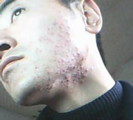 其中额头和下巴上更容易长痘,男生脸上长痘痘怎么办呢?