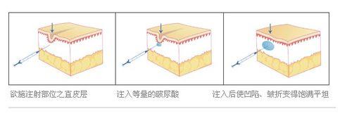 玻尿酸除皱有哪些功效?