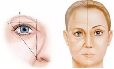 3,实现提升眼角:   随着眼角的上提,改变了三角眼的状态,还可形成