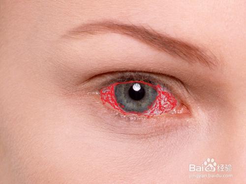 眼球充血图片_冬季养生:眼睛老是充血怎么办?