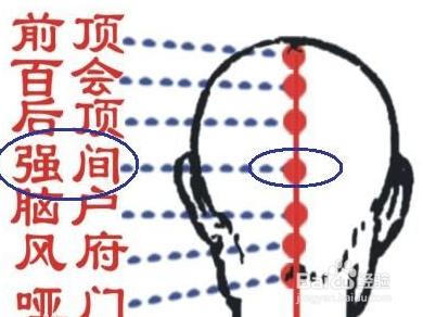 穴_强间穴穴位位置图及作用