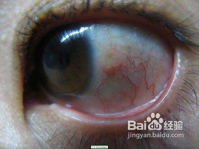 单只眼球充血_怎样消除眼球充血?
