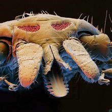 蜱虫勹d�9������/)9b_森脑是什么?蜱虫叮咬能致命吗?怎么治疗?