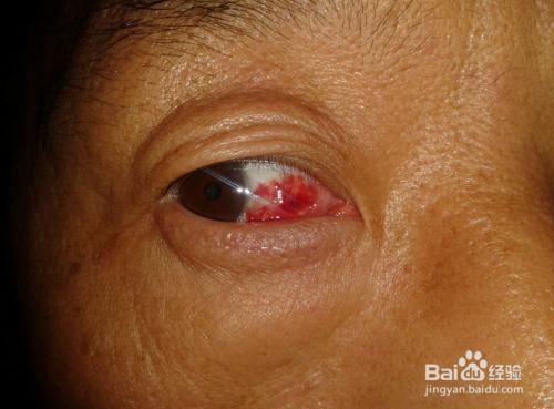 眼球充血图片_眼睛充血是怎么回事