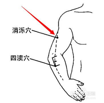 色咪网老穴人体_消泺穴属于手少阳三焦经穴位图,消泺穴位于人体臂外侧,当清冷渊穴与