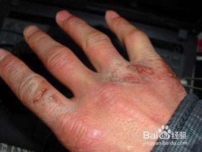 手冻疮的治疗方法