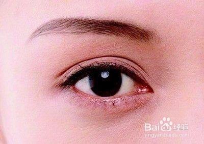 眼睛经常流泪怎么办