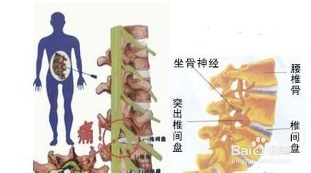 腰椎间盘突出的原因_腰椎间盘突出引发的原因是什么-百度经验