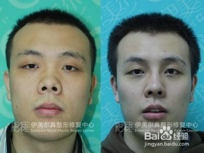 男人鼻孔朝天的图片_短鼻、朝天鼻 前后对比照片-百度经验