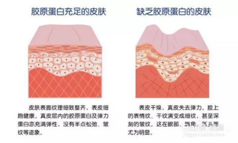 颈椎病埋线的原理_(埋线提升原理图)