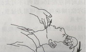 摸摸你的鼻子_教你正确的心肺复苏方法-百度经验