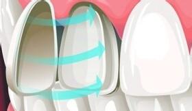 瓷贴面美白牙齿效果如何