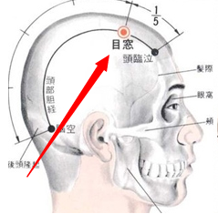 目窗穴穴位位置图及作用
