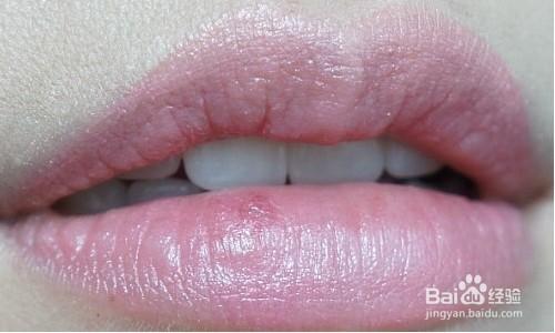 怎样能让嘴唇变红_怎样根据嘴唇颜色辨别身体情况-百度经验