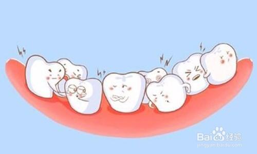 全瓷牙和烤瓷牙的区别