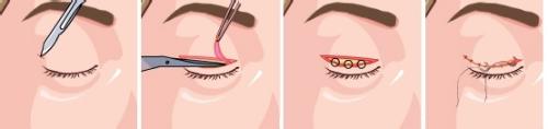 双眼皮手术方法有几种