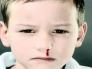 鼻子总是出血怎么回事_有些小孩经常流鼻血,怎么回事-百度经验